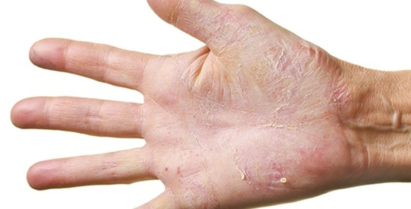Skin reactions - is it really from the gloves?